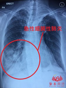 急性肺炎X光