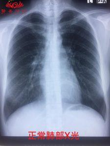 正常肺部X光
