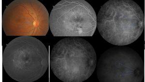 病變視網膜